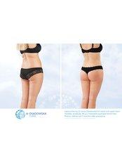 Back Liposuction - Dr Osadowska Clinic Szczecin