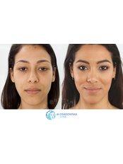 Upper eyelid laser surgery - Dr Osadowska Clinic Szczecin