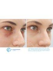 Lower eyelid surgery - Dr Osadowska Clinic Szczecin