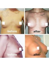 Breast Implants - Beauty Poland Warsaw