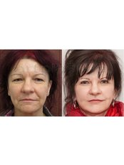 Facelift - Beauty Poland Warsaw