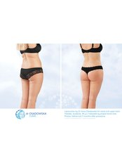 Back Liposuction - Dr Osadowska Clinic Warsaw