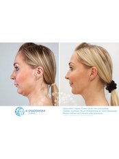 Neck Liposuction - Dr Osadowska Clinic Warsaw