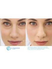 Eyelid surgery - lower +  upper - Dr Osadowska Clinic Warsaw