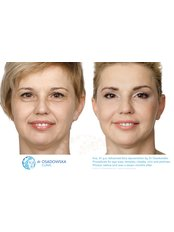 Plastic Surgeon Consultation - Dr Osadowska Clinic Warsaw