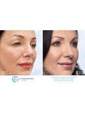 Upper eyelid laser surgery - Dr Osadowska Clinic Warsaw