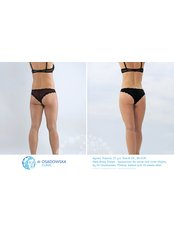 Thigh Liposuction - Dr Osadowska Clinic Warsaw