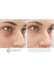 Lower eyelid surgery - Dr Osadowska Clinic Warsaw