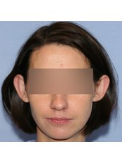 Otoplasty - UNI KLINIK Plastic Surgery