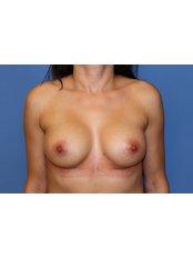 Breast Implants - UNI KLINIK Plastic Surgery