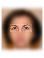 Blepharoplasty - UNI KLINIK Plastic Surgery