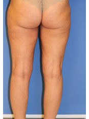 Liposuction - UNI KLINIK Plastic Surgery