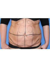 Tummy Tuck - UNI KLINIK Plastic Surgery