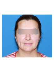 Facelift - UNI KLINIK Plastic Surgery