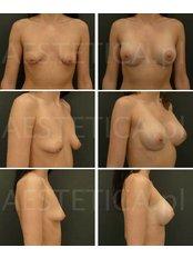 Brustvergrößerung - Tubuläre Brust (Schlauchbrust) - AESTETICA von Dr. Jacek Jarliński