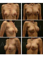 Bruststraffung mit Implantaten - AESTETICA von Dr. Jacek Jarliński