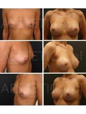 Brustvergrößerung - AESTETICA von Dr. Jacek Jarliński