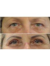 Eyelid Surgery - Beauty Poland Wroclaw