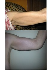 Arm Lift - ClinicForYou