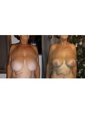 Breast Reduction - ClinicForYou