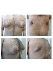 Gynecomastia - ClinicForYou