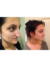 Rhinoplasty with Nose Tip Reshaping - ClinicForYou