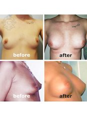 breast augmentation - CORAMED Beauty Surgery