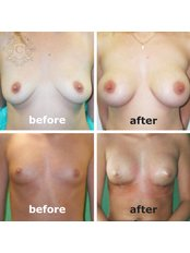 Breast Implants - CORAMED Beauty Surgery
