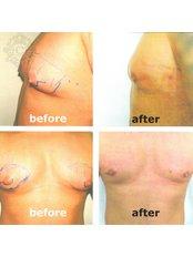 male gynecomastia - CORAMED Beauty Surgery