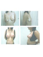 breast lift with augmentation - CORAMED Beauty Surgery