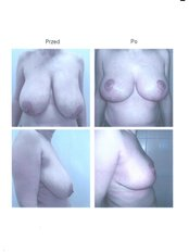 breast reduction - Coramed