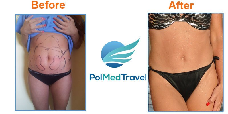 Best Travel Insurance For Cosmetic Surgery