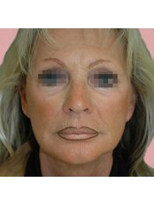 Facelift - Professional Beauty