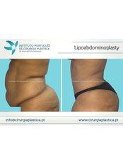 Lipoabdominoplasty - Instituto Português de Cirurgia Plástica Dr. Tiago Baptista Fernandes