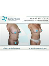 Mommy Makeover - Instituto Português de Cirurgia Plástica Dr. Tiago Baptista Fernandes
