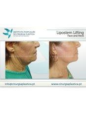 Facelift - Instituto Português de Cirurgia Plástica Dr. Tiago Baptista Fernandes