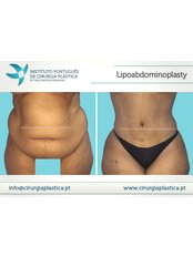 Tummy Tuck - Instituto Português de Cirurgia Plástica Dr. Tiago Baptista Fernandes