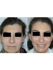 Facelift - Dr.Somar Ataf
