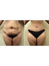 Full Abdominoplasty - Dr.Somar Ataf