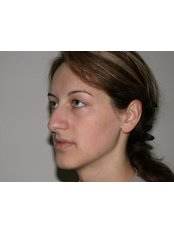 Rhinoplasty - Dental/Medical Center for Maxillofacial Surgery Beograd-Centar