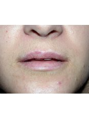 Lip Augmentation - Dental/Medical Center for Maxillofacial Surgery Beograd-Centar