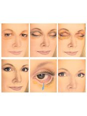 Eyelid Surgery - Victoria Regia