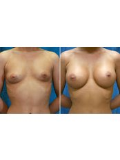 Breast Implants - Beauty Trust Line Cosmetic Surgery Slovakia