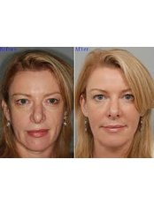 Facelift - Beauty Trust Line Cosmetic Surgery Slovakia