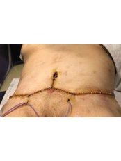 After Tummy Tuck - Evita Clinic