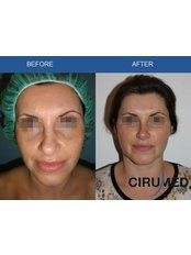 Mini Facelift - Cirumed Clinic Marbella