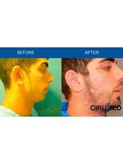 Otoplasty - Cirumed Clinic Marbella