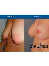 Nipple Reduction - Cirumed Clinic Marbella