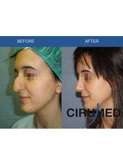 Closed Rhinoplasty - Cirumed Clinic Marbella