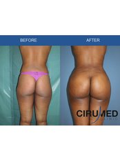 Butt Lift - Cirumed Clinic Marbella